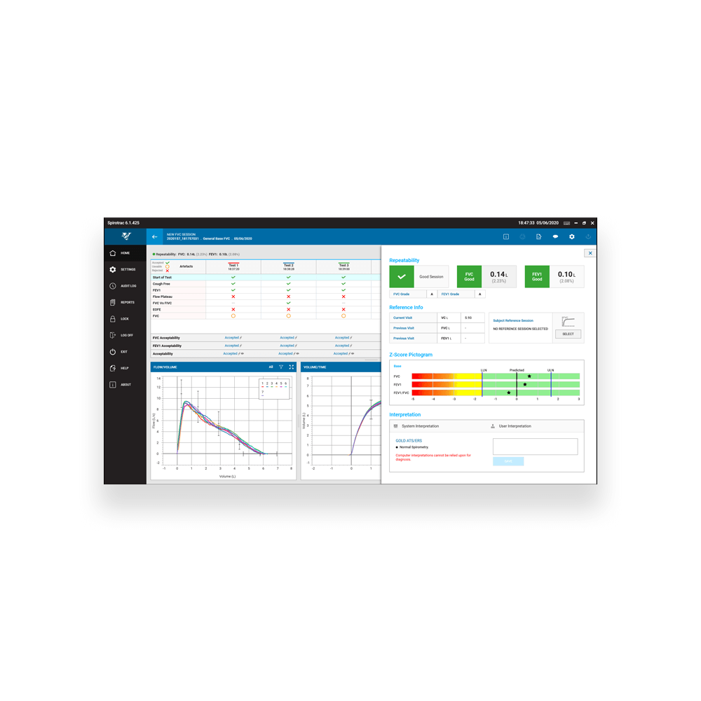 Screenshot_1_Sp6_FVC_QA_Analysis
